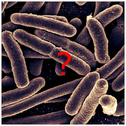 Bakteria E.Coli / Konsultacja Mikrobiologiczna: Agnieszka Kiełczewska